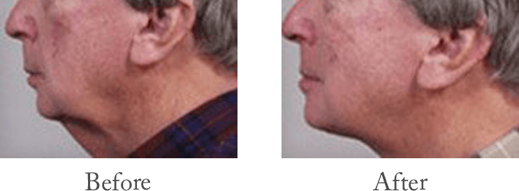 Neck Lift Before & After