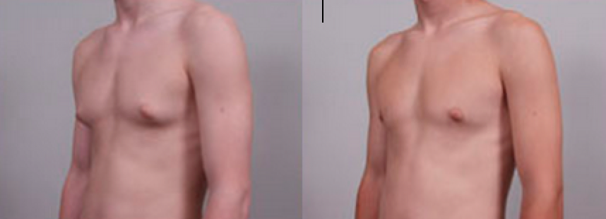 Before and after Male Breast Reduction