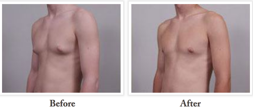 Before and after Gynecomastia Treatment