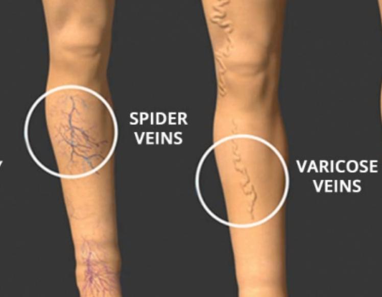 Illustration of spider veins and varicose veins